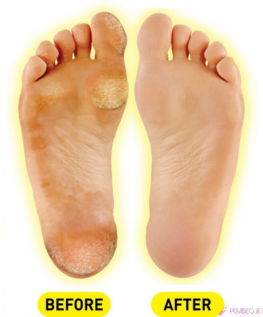 how to heal open blisters on feet fast