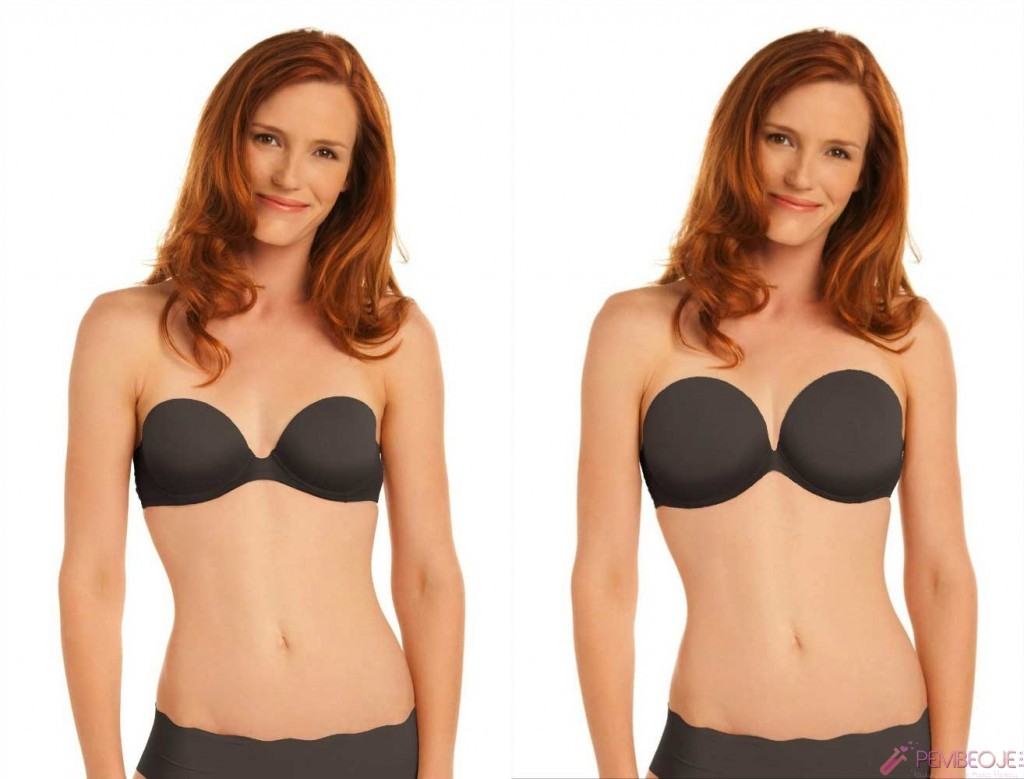 Photo Gallery - San Diego Breast Augmentation